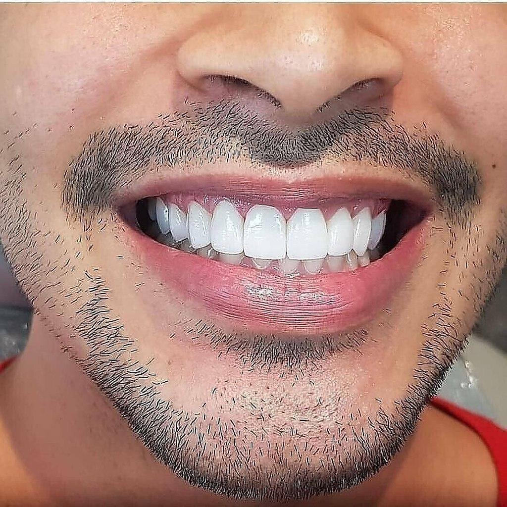 как в айфоне поправить зубы на фото улыбается